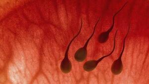hi-sperm-istock-852