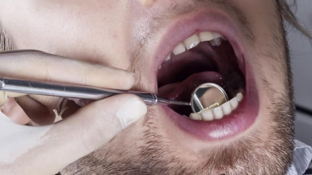 Military records show some Canadian Forces dentists — who make between $200,000 and $300,000 a year, plus benefits — treat relatively few patients over the last seven years.