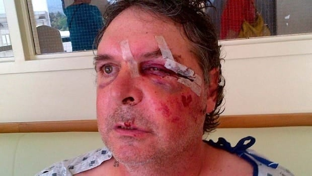 Tom Campen said an RCMP officer grabbed his fingers and pushed him backward when he got up to speak during a woman's arrest in Creston's Kokanee Inn. The next thing he said he remembers is waking up in hospital.