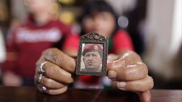 Venezuela's President Hugo Chavez is is being treated for a respiratory deficiency after complications from a severe lung infection weeks after undergoing a cancer-related surgery.