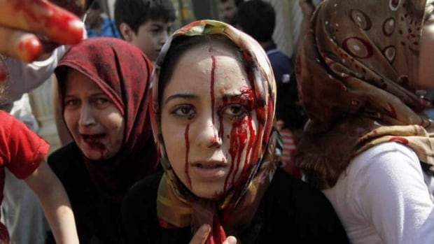 Injured Syrian women arrive at a field hospital near Aleppo, Syria, in August 2012. Human rights activists allege cluster bombs used by the regime have killed 11 civilians over the last two weeks.