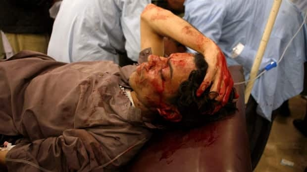 An injured man lies in a hospital after the second bomb blast in Quetta on Thursday. Twin explosions in different parts of the city, including one outside of a pool hall, killed dozens of people.