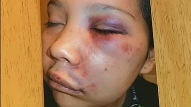 Martina Jeff says her teenaged daughter, Jamie Haller, was punched in the face by an RCMP constable while she was handcuffed in the back of a police car