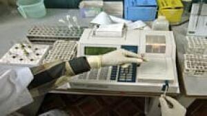 si-hepatitis-blood-test-220
