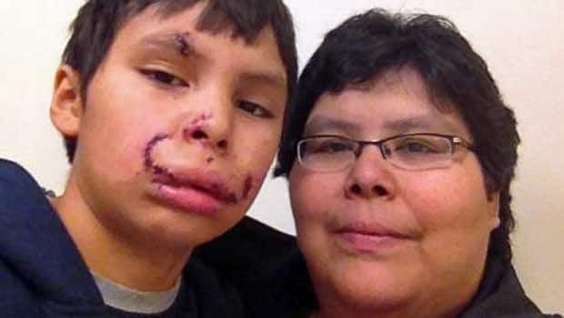 Dante Mekanak and mom Samantha Mekanak shortly after he received treatment in hospital. The 11-year-old Kingsway Park School student had to have 65 stitches in his face after a dog bit him in a Thunder Bay park.