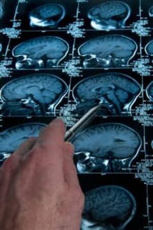 si-brain-scan-220-istock