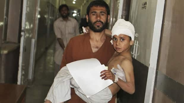 A young injured Afghan boy is carried by his father into the emergency room at the hospital in Kandahar on Friday after a car bomb exploded inside an elite gated community linked to the family of Afghan President Hamid Karzai.