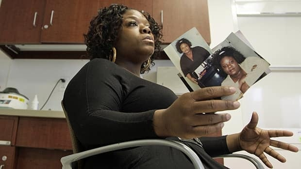 Tamikka McCray, 39, holds photos showing her before weight-loss surgery. McCray no longer needed to take diabetes medication and insulin after her surgery.