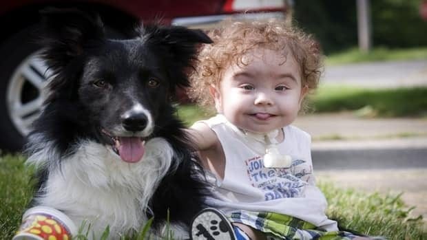 Kaiba Gionfriddo plays with the family's dog, Bandit, outside his Youngstown, Ohio home on Tuesday. He's now able to breathe normally with a first-of-a-kind biodegradable airway.