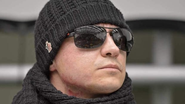Artistic director of the Bolshoi's ballet  Sergei Filin hides his  injuries  under a black scarf during a press conference at the university hospital in Aachen, Germany, on Friday. Doctors say he should recover enough vision to work.