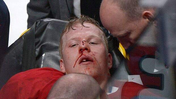 Canadiens' Lars Eller is taken off the ice following a hit by Senators' Eric Gryba in the second period Thursday. Eller suffered a concussion, plus facial and dental fractures.