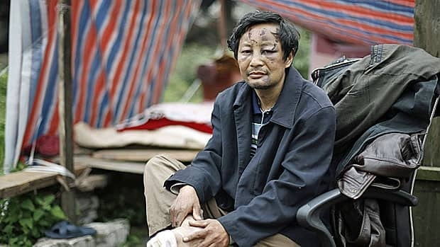 A survivor of Saturday's earthquake in a remote section of Sichuan province, in southwestern China, sits outside a makeshift tent waiting for help.