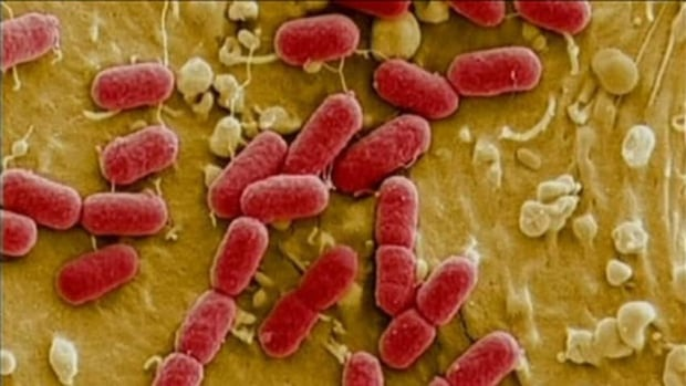 Quebec's Ministry of Health says inspectors have visited the restaurant linked to seven cases of E. coli poisoning.