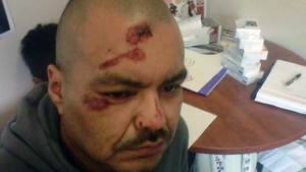 The BCCLA says William Watts, 36, received multiple head injuries after he called 911 for assistance with his sister.