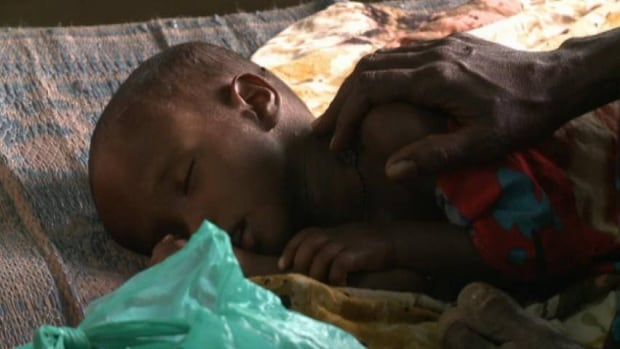 Somalia's state of famine