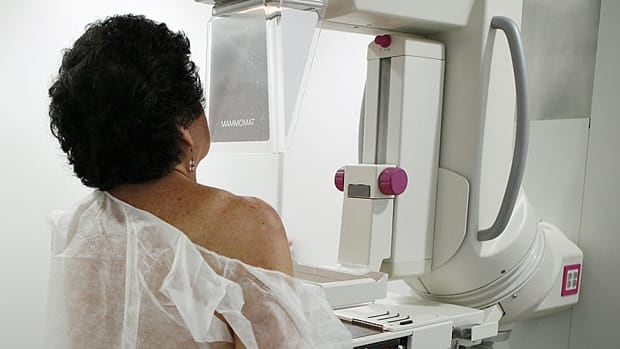 Mammography can't avert most breast cancer deaths, the head of the American Cancer Society says.