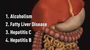 hi-bc-121224-liver-disease-causes-graphic-4col