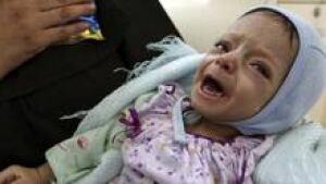 si-malnutrition-child-220-c