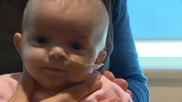 Baby Scarlett, who is being treated at the IWK Health Centre in Halifax, has a flat spot on her head.