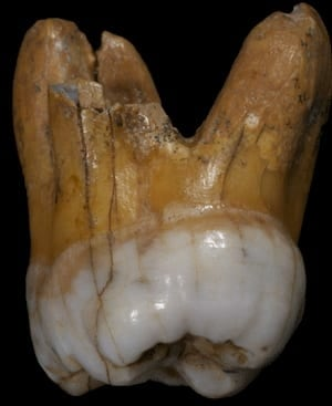 si-denisovan-tooth