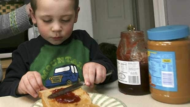 Peanut butter and jelly sandwiches aren't an option for about one in 50 Canadian children. A new study sheds light on the genetics behind the allergy.