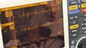 si-heart-monitor-220-cp-rtr