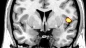 si-brain-mri-insula-120cp