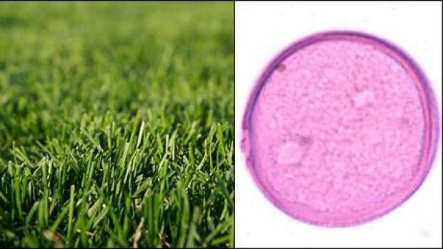 June Grass Allergy Grass pollen allergies peak inJune Grass Allergy
