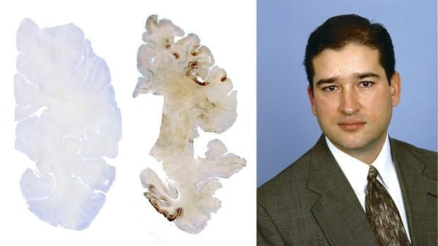 Ex-NFL player Mike Borich's brain, right, shows evidence of chronic traumatic encephalopathy when compared to the brain of a healthy 61-year-old, left. Borich, far right, died in 2009 at age 42 of a drug overdose.