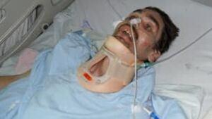 sk-mb-injured-lafortune-2-f