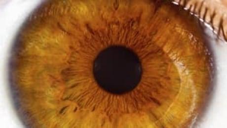 tp-istock_eyeball