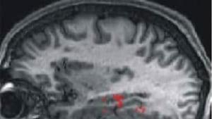 tech-090312-tp-fmri-scan