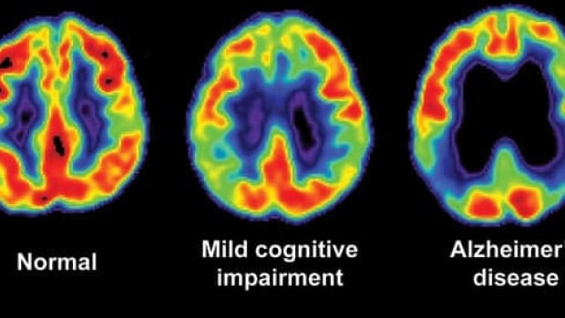 Normal levels of glucose metabolism in a PET scan (left), indicated in yellow and red. The levels of glucose metabolism in the brain are decreased in patients with mild cognitive impairment (middle) and with Alzheimer's disease (right).
