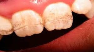Celiac Teeth