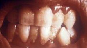 teeth_gingivitis_PHIL