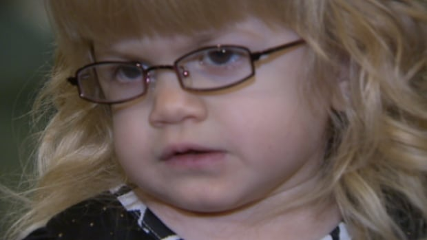 Aleena Sadowynk, 3, has a rare condition called Maroteaux-Lamy Syndrome.