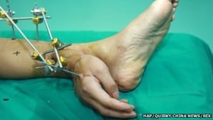 Hand grafted on ankle