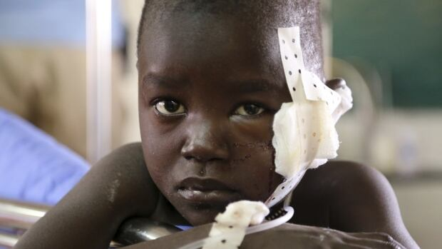 A young boy, injured while fleeing from clashes, rests at a medical clinic inside the United Nations compound on the outskirts of the capital Juba in South Sudan. UN diplomats said as many as 500 people have been killed in violence that is believed to be largely along ethnic lines.