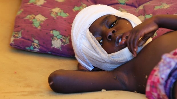 An injured child rests in a United Nations base tent near the international airport in Juba, the capital of South Sudan. Clashes between rival groups of soldiers in Juba a week ago have spread across the country.