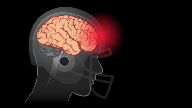 A Radio-Canada investigation shows that the main organizations responsible for school-level sports don't do much when it comes to tracking, detecting and managing head injuries and concussions.