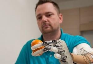 HealthBeat Bionic Hand