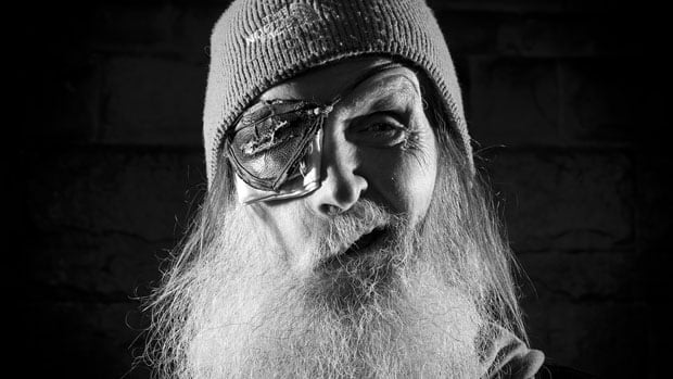 Bruce Sauer, who wears an eye patch because of his Bell's palsy, was photographed by the Canadian Press last year.