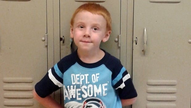 Logan Hampson, 7, received a liver transplants when he was 20 months old.