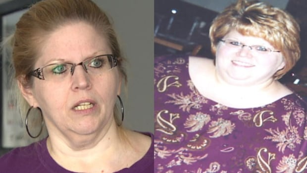 Tess Boehm had bariatric surgery nine years ago, in Brazil. Prior to the procedure she weighed over 400 pounds.