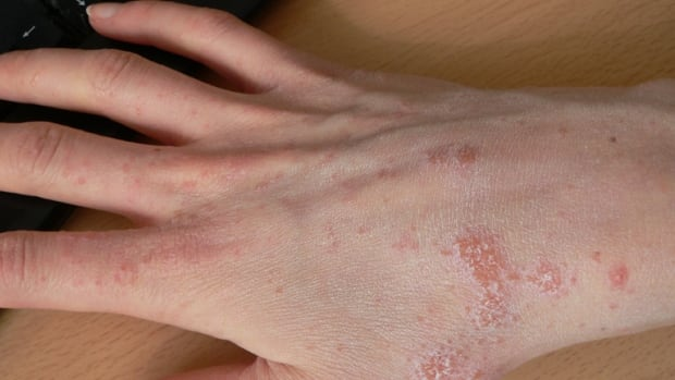 Scabies is a contagious skin disease that can spread from skin to skin contact or contaminated linens.