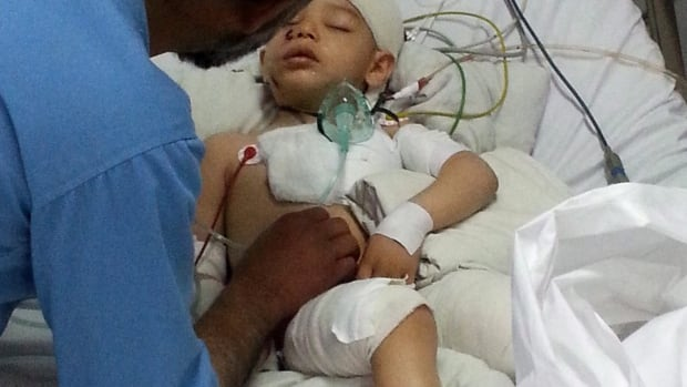 Abuzar Ahmad, 2, is the only surviving child of Agence France-Presse journalist Sardar Ahmad, who was killed with the rest of his family in an attack on a Kabul hotel. The boy, shown here in hospital, is expected to arrive tonight in Toronto, where he will be cared for by family members.