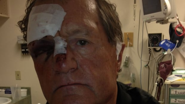 Al Ford was assaulted outside a south Regina liquor store on May 12, 2014.