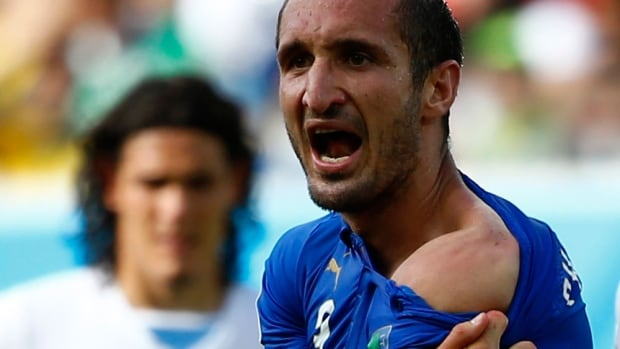 Italy's Giorgio Chiellini appeals to the referee, showing him what he thinks is a bite mark from Uruguay's Luis Suarez.