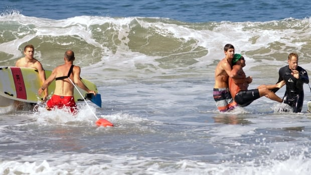 Steven Robles, second from right, was pulled to the Manhattan Beach shore on a paddle board. Paramedics treated his shark-bite wounds.