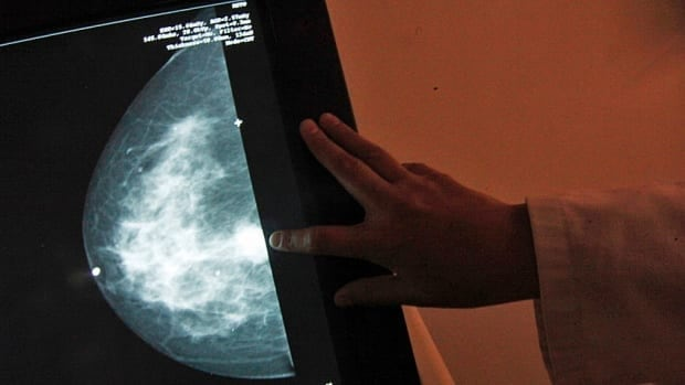Can Aspirin treat breast cancer?